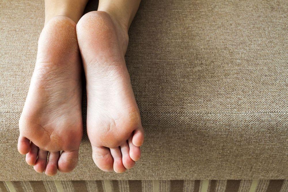 bigstock-dry-cracked-skin-of-woman-feet-279273562