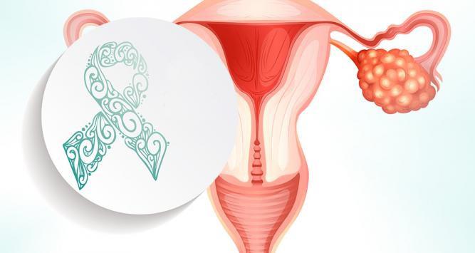 Cancer-ovario-febrero-2018